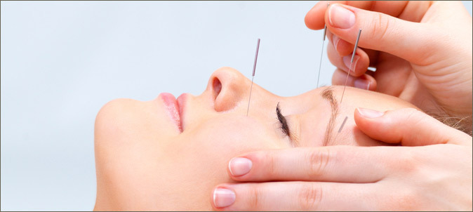 "<img alt=""Facial Rejuvenation Dry Needling"">"
