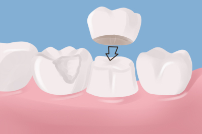 Find out more about Dr. Henke's dental services