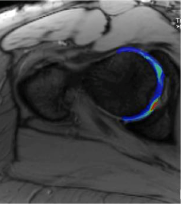 MRI based T2 Mapping