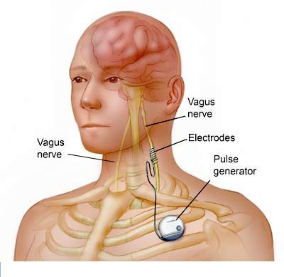 A New Way to Treat Rheumatoid Arthritis: Nerve Stimulation