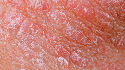 Is the Bar of Success too Low in Psoriasis?