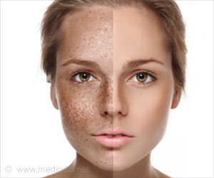 what is Pigmentation and how to treat it