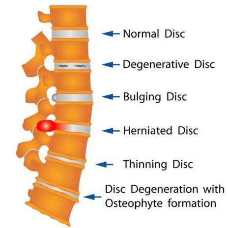 back pain care and disc problems