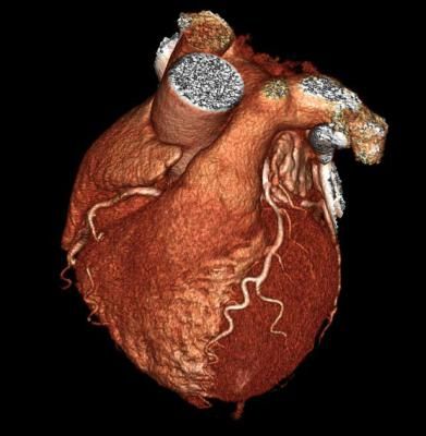 3d MRI image of a heart