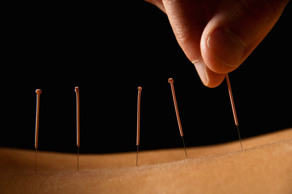 acupuncture needles being placed