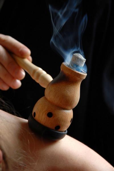 moxibustion therapy