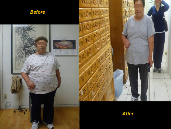 Classic Real Success Stories of Weight Loss