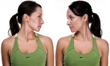 Stiff neck and Parkinson's