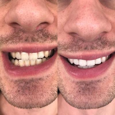 Whitening Available