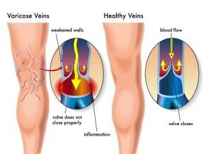weak veins