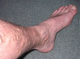 vericose veins foot