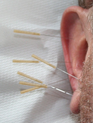 Ear Acupuncture at MClinic
