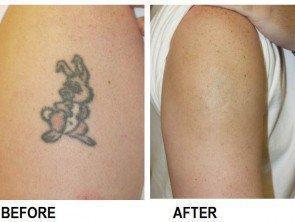 Tattoe Removal Creams/Gel