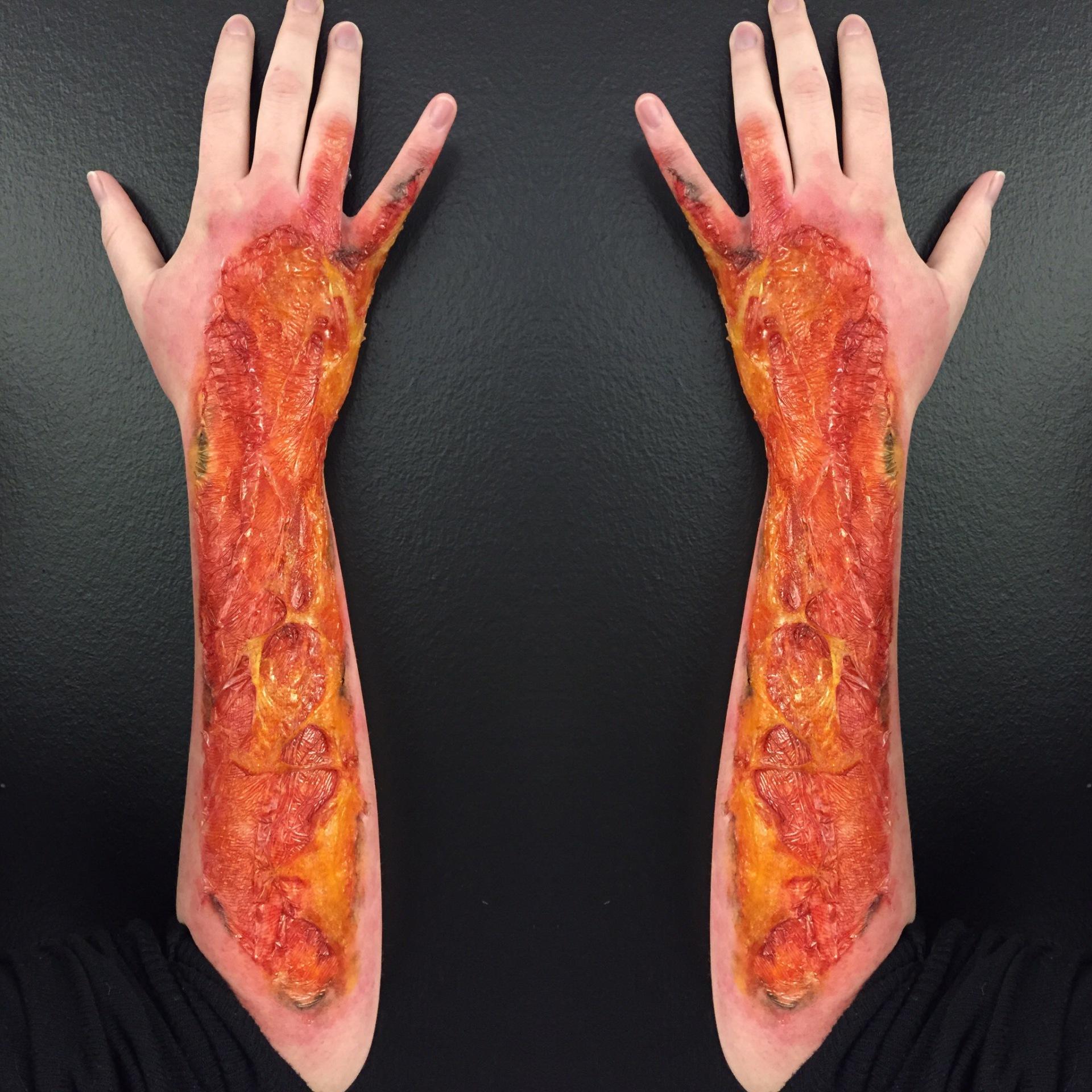 3rd Degree Gelatin Burn