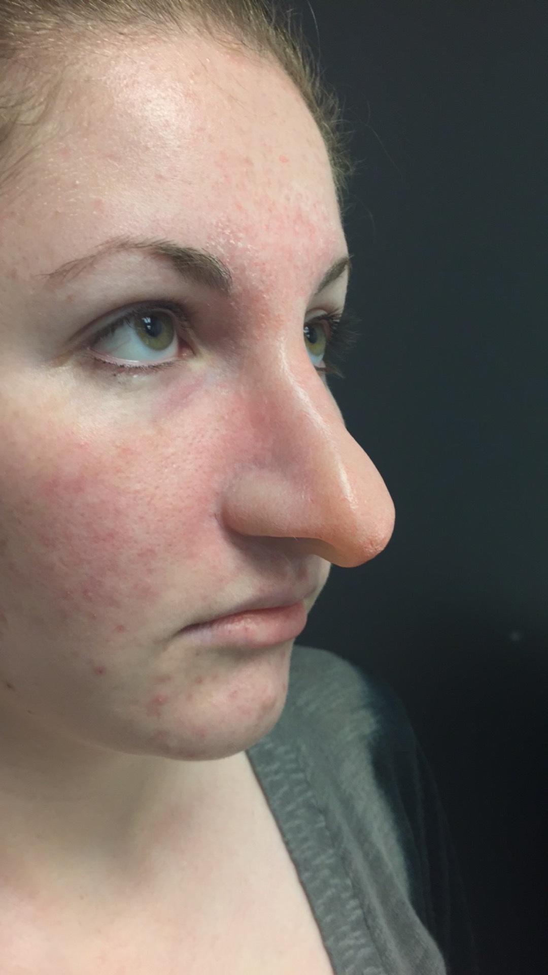 Sara Jessica Parker Nose