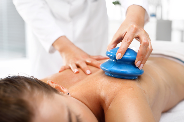 Cupping massage NW Portland OR