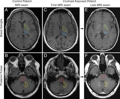 MRI Contrast Deposition in Neuronal Tissue in Subjects with Normal Renal Function