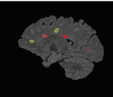 Observing Reduced Venous Flow in Migraine Patients Using MRI