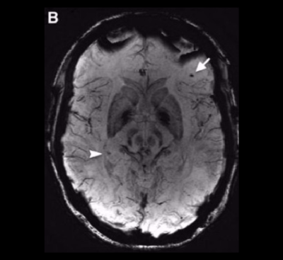 Microhemorrhages in Traumatic Brain Injury May be Missed if Imaged too Late