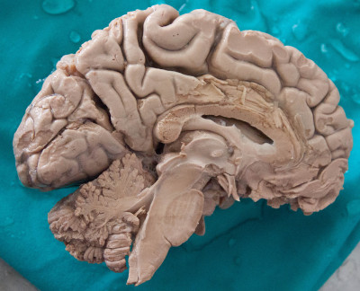 Looking at thinking ; the human brain