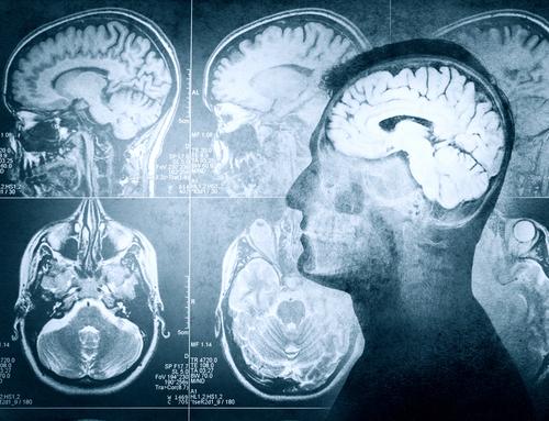 Enhancing Neuro Imaging Genetics  through Meta Analysis (ENIGMA)