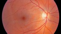 Clinical Criteria for Digital Retinal Imaging