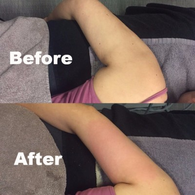 Arm Slimming & Tightening