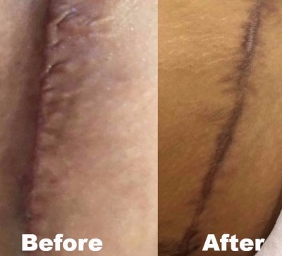 Softening of Scar Tissue