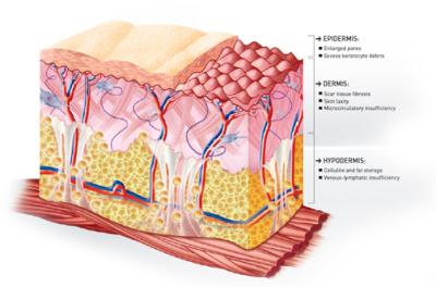 Skin Correctives
