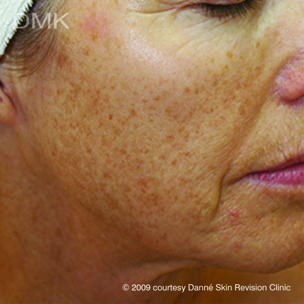 Pigmentation Problems? Push it up & out of your skin