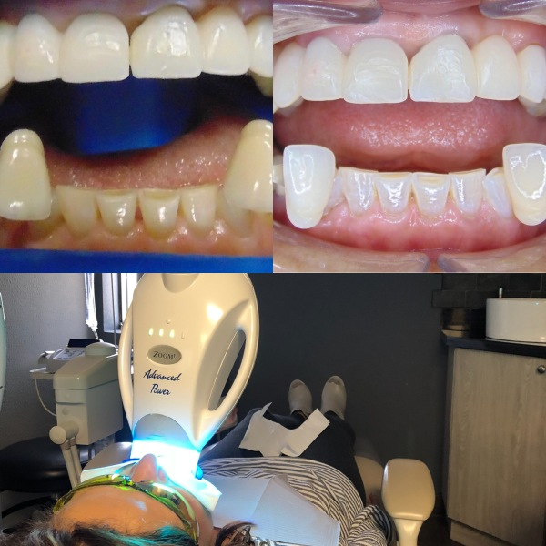 Zoom Whitening and Bridge Work