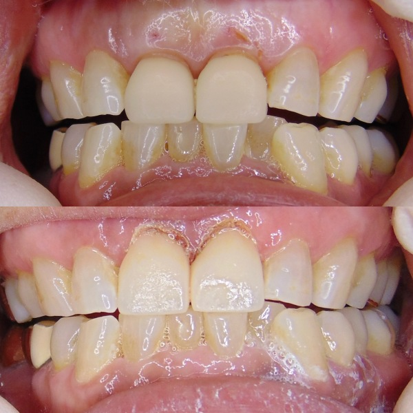 Same Day Crowns and Lengthening