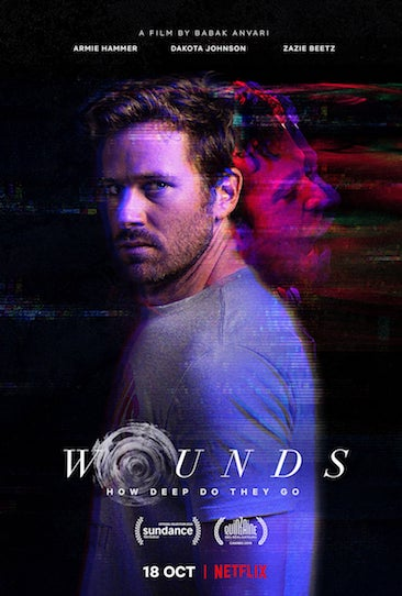 Episode 694 - Wounds (2019)