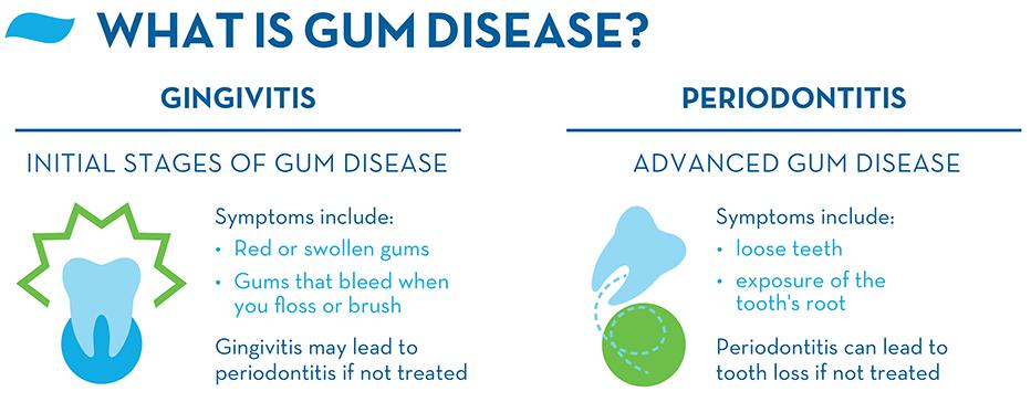 what-is-gingivitis-gum-disease-and-periodontitis