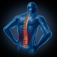 Identifying the Main Causes of Lower Back Pain
