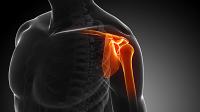 Understanding Shoulder Impingement