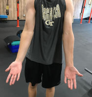 Missing Elbow Extension in Pitchers