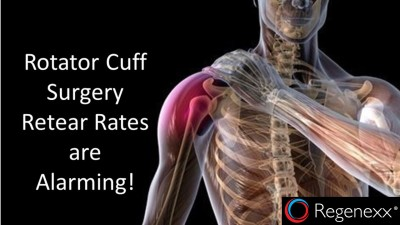 Rotator Cuff: The Unlikely Reason for Your Shoulder Pain
