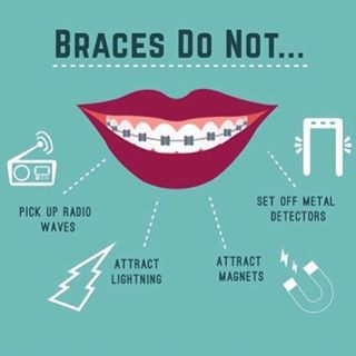 Braces 101: Everything You Need to Know