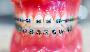How to Retain Your Retainer