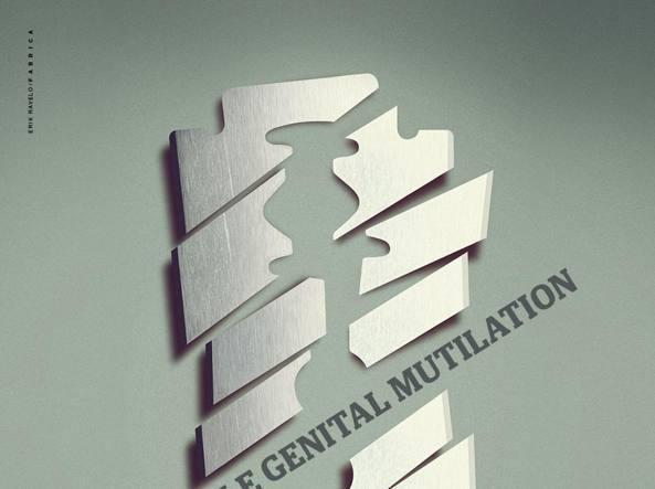 Mutilazione genitali