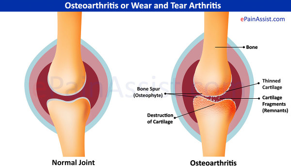 osteoarthritis, arthritis