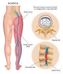 sciatica, leg pain, nerve pain