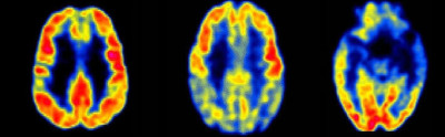 FDG-PET Scan Alzheimer's FTD
