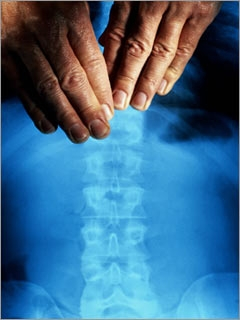 Chiropractic adjustments: Chiropractor Rochester, NY
