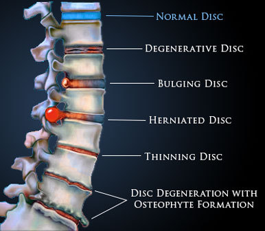 Chiropractor, Dr. John Schurr D.C. may be able help with bulging or herniated discs.