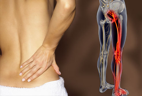 Dr. John Schurr at Schurr Family Chiropractic - Rochester, NY can help with back pain.