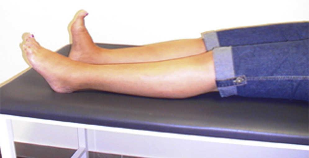 Focal gradual-onset variant of stiff-person syndrome