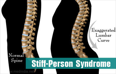 What is Stiff-Person Syndrome?