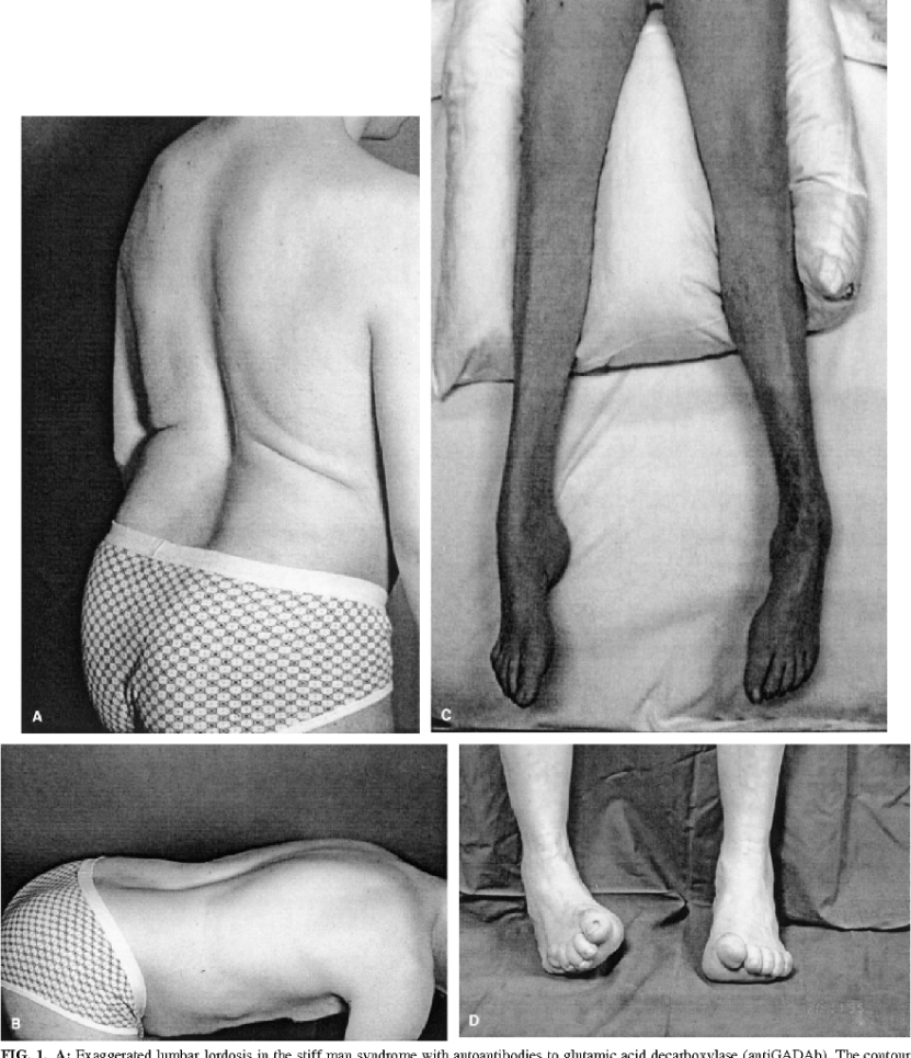 Stiff man syndrome and related conditions.